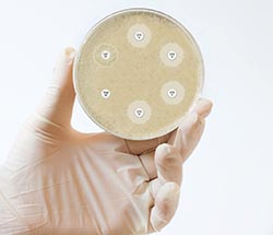 Antimicrobial resistance: where are we now?