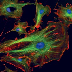 Fluorescence microscopy in the pathology laboratory