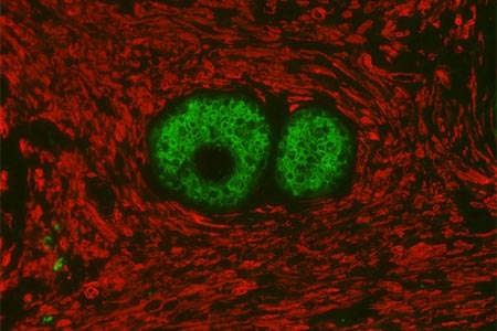 Double staining streamlines Immunofluorescence Workflow
