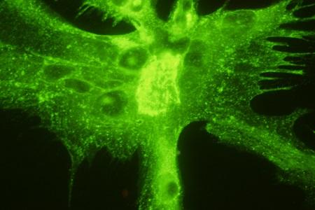 Herpes virus monoclonal antibodies