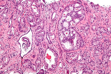 Biomarker test for high-grade prostate cancer could avoid need for biopsy