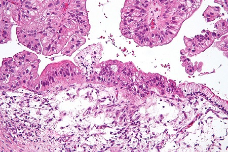 Demand for histopathology in focus